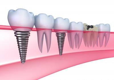 שלבים בטיפול השתלת עצם