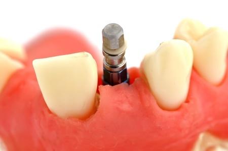 שיקום שיניים על גבי שתלים