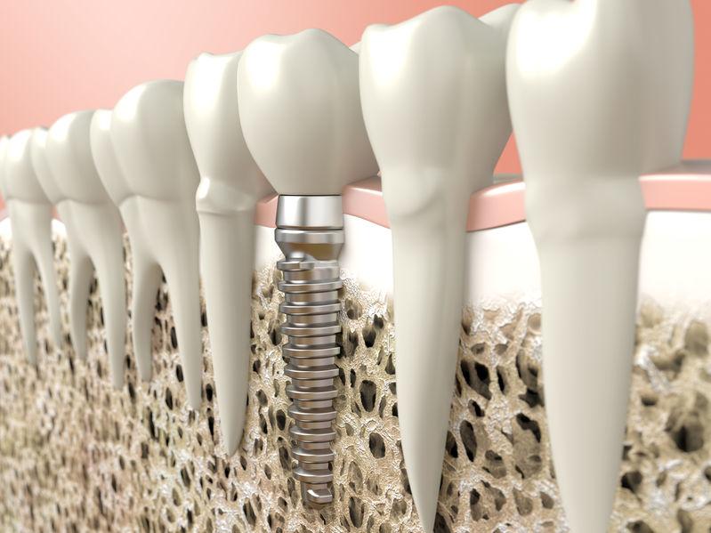 שיניים זמניות בהליך השתלת השיניים