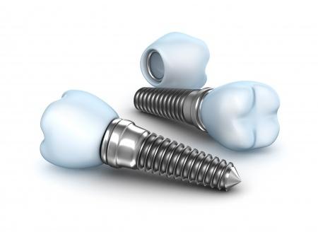 על השלבים של השתלת שיניים